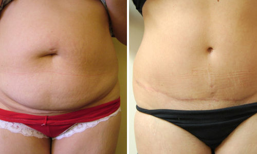 Full abdominoplasty