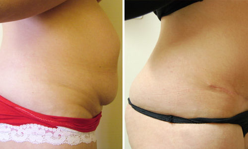 Full abdominoplasty (side view)
