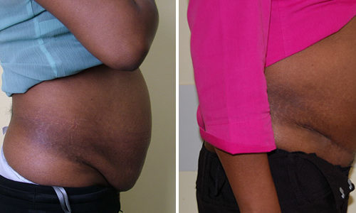 Aprenoctomy and Liposuction (side view)