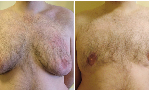 Severe Gynaecomastia treated with excsion and liposuction