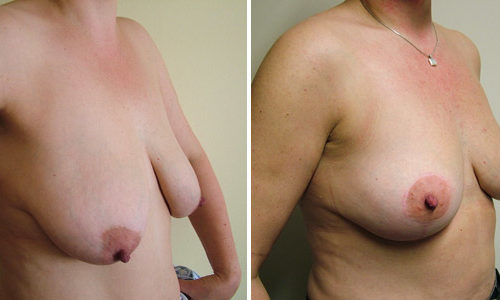 Breast Uplift - Side View