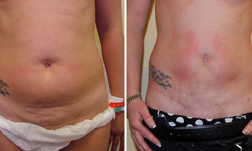 Mini-abdominoplasty and Liposuction